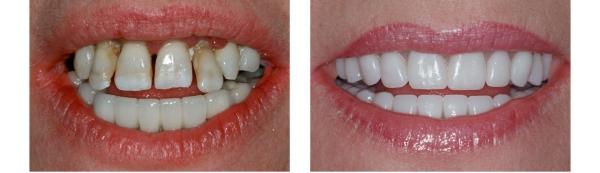 Циркониевые виниры цена на один зуб фото