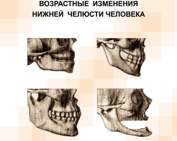 Клиника антивозрастной стоматологии