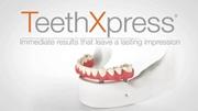 Метод имплантации Teethxpress