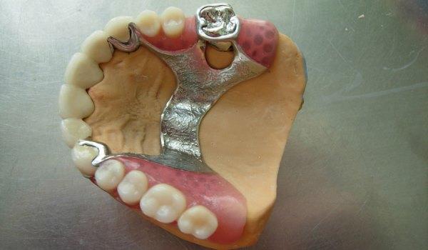 Выбор опорных зубов для бюгельного протеза