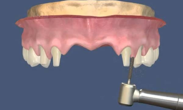 Выбор опорных зубов и расчет жевательной нагрузки