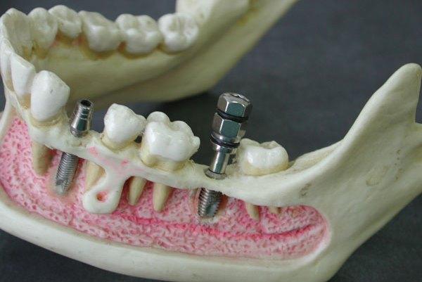 Почему имплант зуба выпадает и как быть