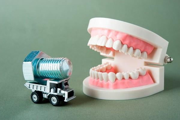 Выпал имплант зуба что делать