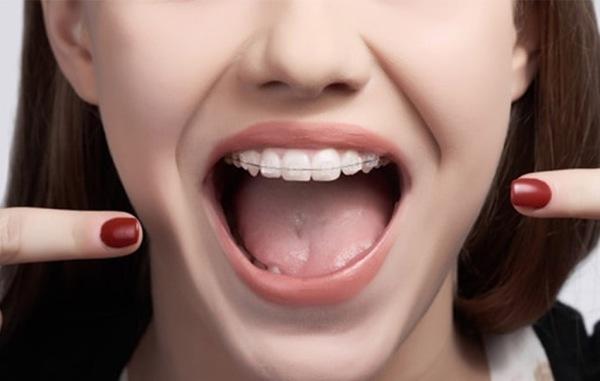 Обязательные этапы лечения брекетами