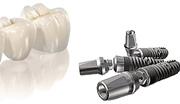 Импланты зубов производителей России