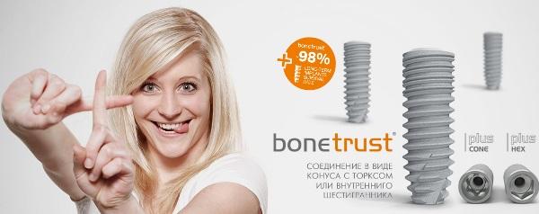 Плюсы и минусы имплантов BoneTrust