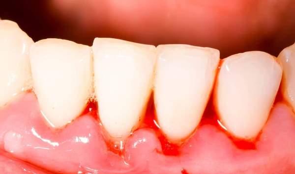 Как избавиться о появления крови из-под коронки зуба