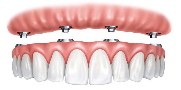 После удаления зуба когда можно делать протезирование