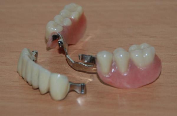 Протезирование зубов после удаления через сколько