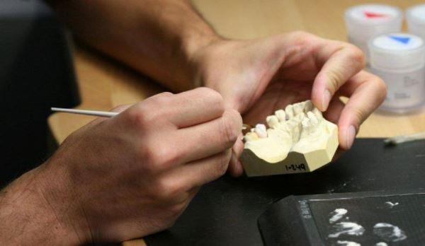 Сколько времени уходит на протезирование зубов