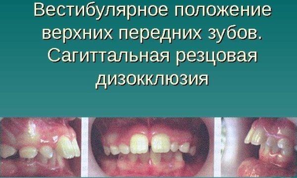 Вестибулярное положение зубов