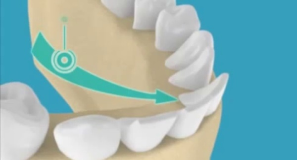 Чем опасно вестибулярное положение зубов