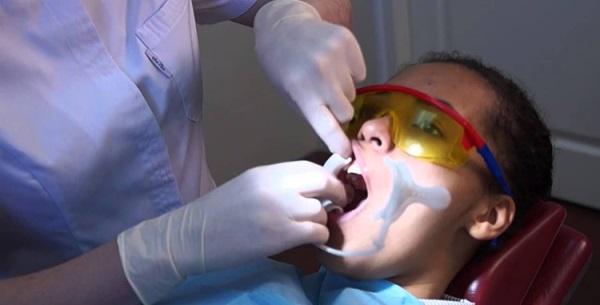 Вытягивание клыка из десны брекетами