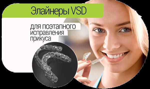 Преимущества элайнеров VSD
