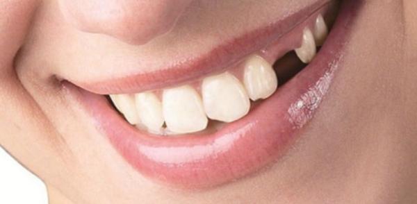 Какие могут быть последствия при потере зуба