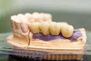 Протезирование зубов сколько времени