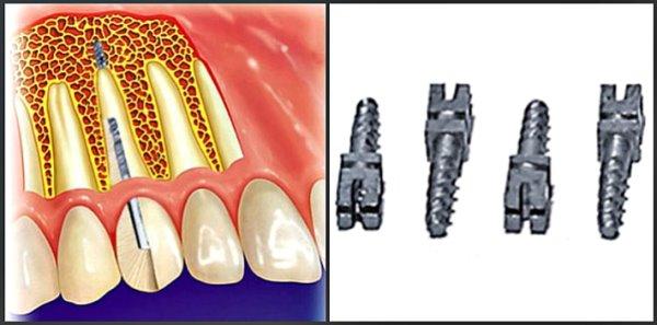 Стоимость титанового импланта зуба