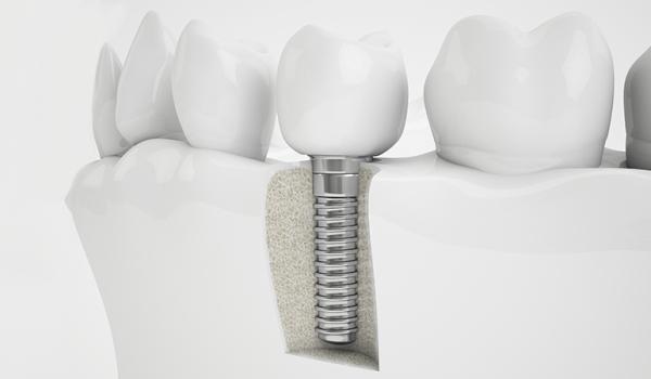Показания к установке титанового импланта зуба