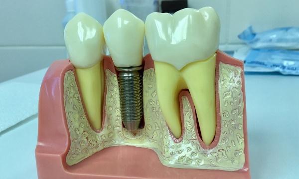 Стоимость установки одного зуба
