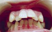 Вестибулярное положение зубов исправление