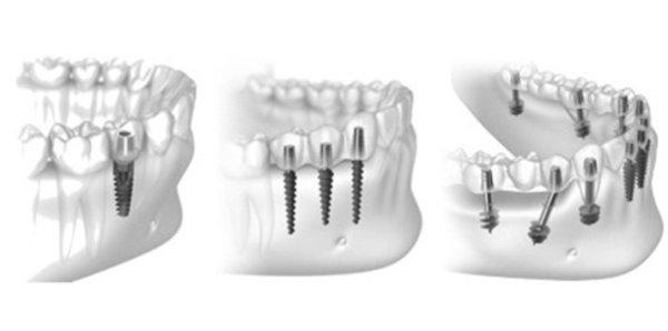 Базальная имплантация нижних зубов
