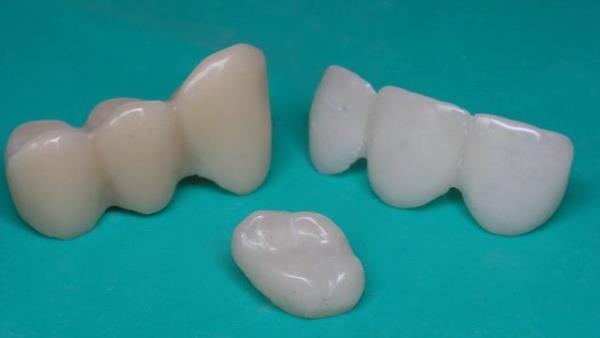 Уход за пластмассовым мостовидным протезом