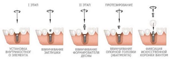 Имплантация 6 нижнего зуба