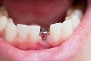Варианты имплантации зубов на нижней челюсти