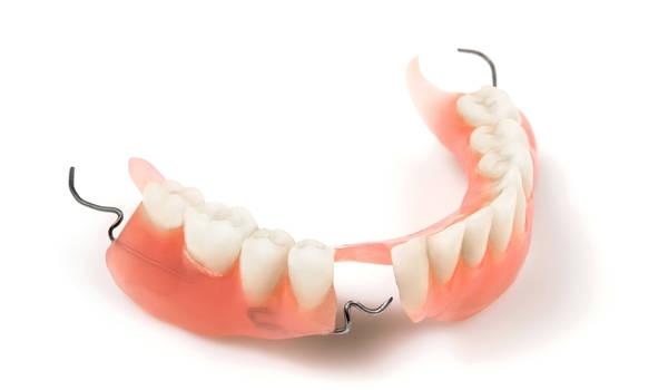 Съемный пластиночный протез при частичном отсутствии зубов