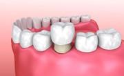 Можно ли ставить коронку на живой зуб отзывы