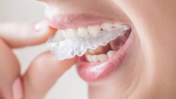Скученность зубов мкб 10