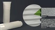 Поверхность зубного имплантата sla