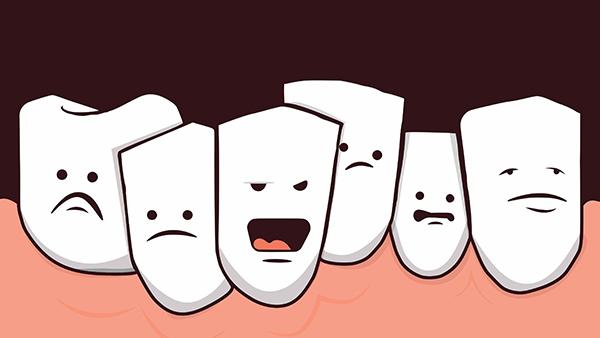Скученность зубов нижней челюсти