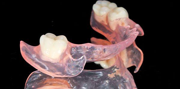 Назначение съемных зубных протезов при частичном отсутствии зубов