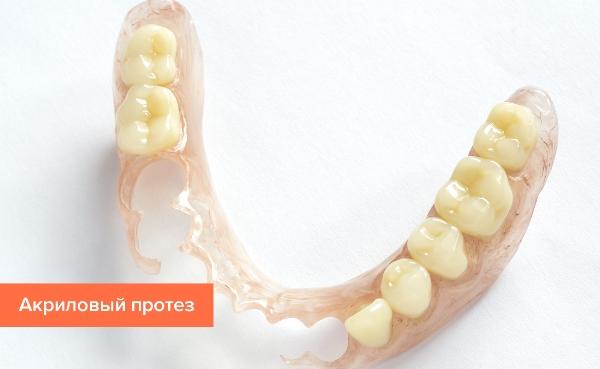 Лучшие зубные протезы при частичном отсутствии зубов