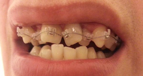 Скученность зубов у детей фото
