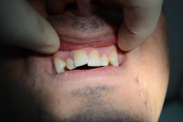 Методы лечения скученности зубов