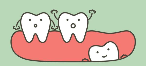 Лечение скученности передних зубов
