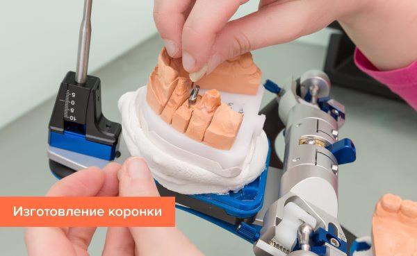 Завершающее протезирование