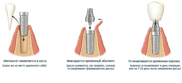 Установка импланта сразу после удаления
