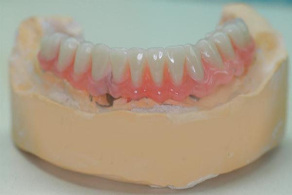 Имплантация 7 нижнего зуба