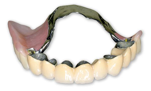 Верхний зубной протез без неба