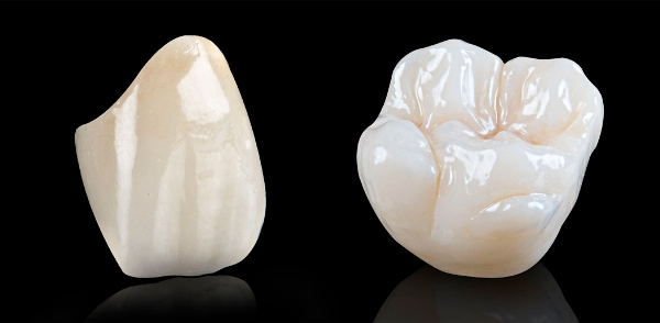 Характеристики безметалловой коронки на зуб