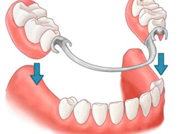 Протез на нижние и верхние жевательные зубы