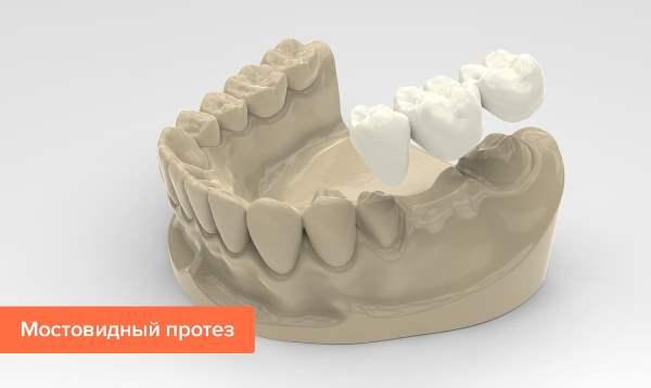 Мостовидный протез на жевательные зубы фото