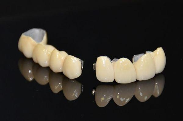 Показания к применению штампованных комбинированных коронок
