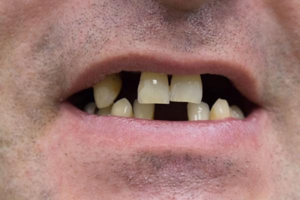 Недостатки несъемных зубных протезов при частичном отсутствии зубов