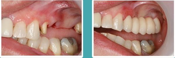 Съемные протезы на жевательные зубы