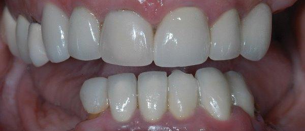 Варианты протезов на жевательные зубы