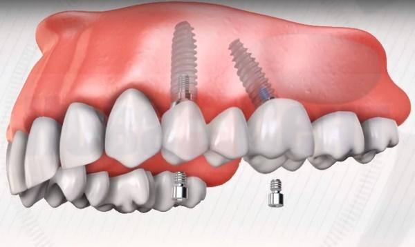 Если нет жевательных зубов какой протез лучше